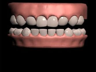 Зубы человека оказались тверже акульих