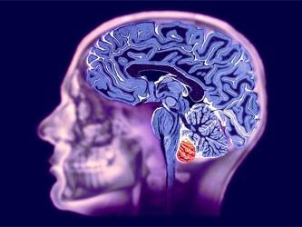 Алкоголь меняет активность мозга подростков до неузнаваемости